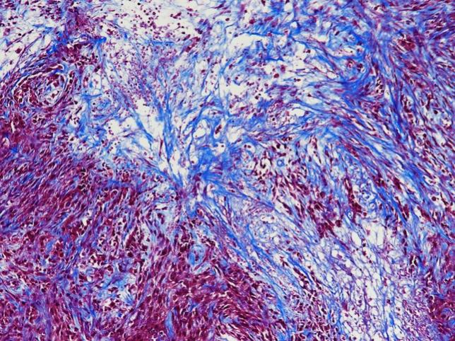 Visualizing cell death in a lung tumor (Masson's trichrome staining)